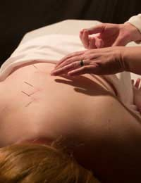 Acupuncture Acupressure Complimentary
